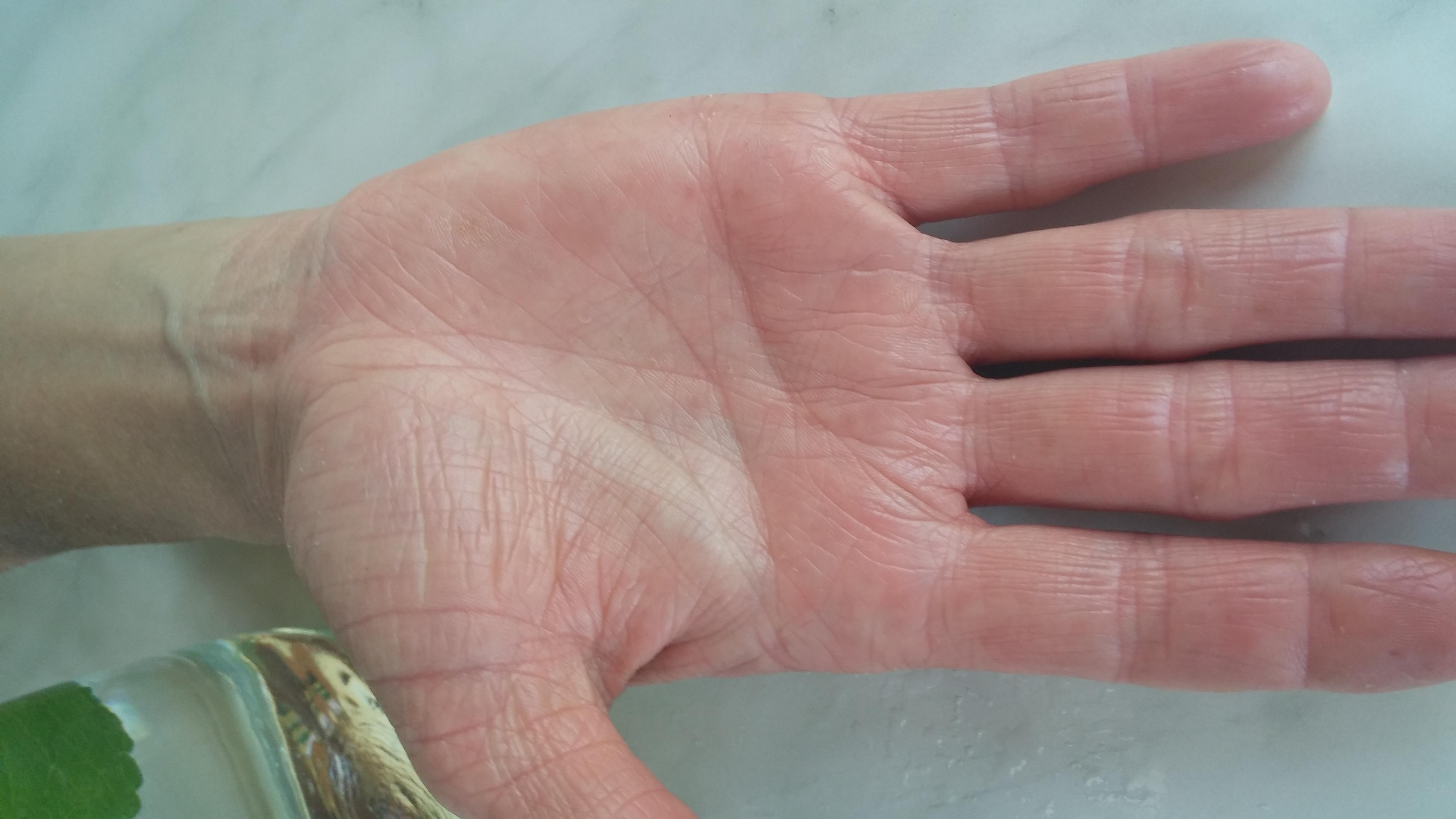 treibt gekochter milchreis urin aus der blase