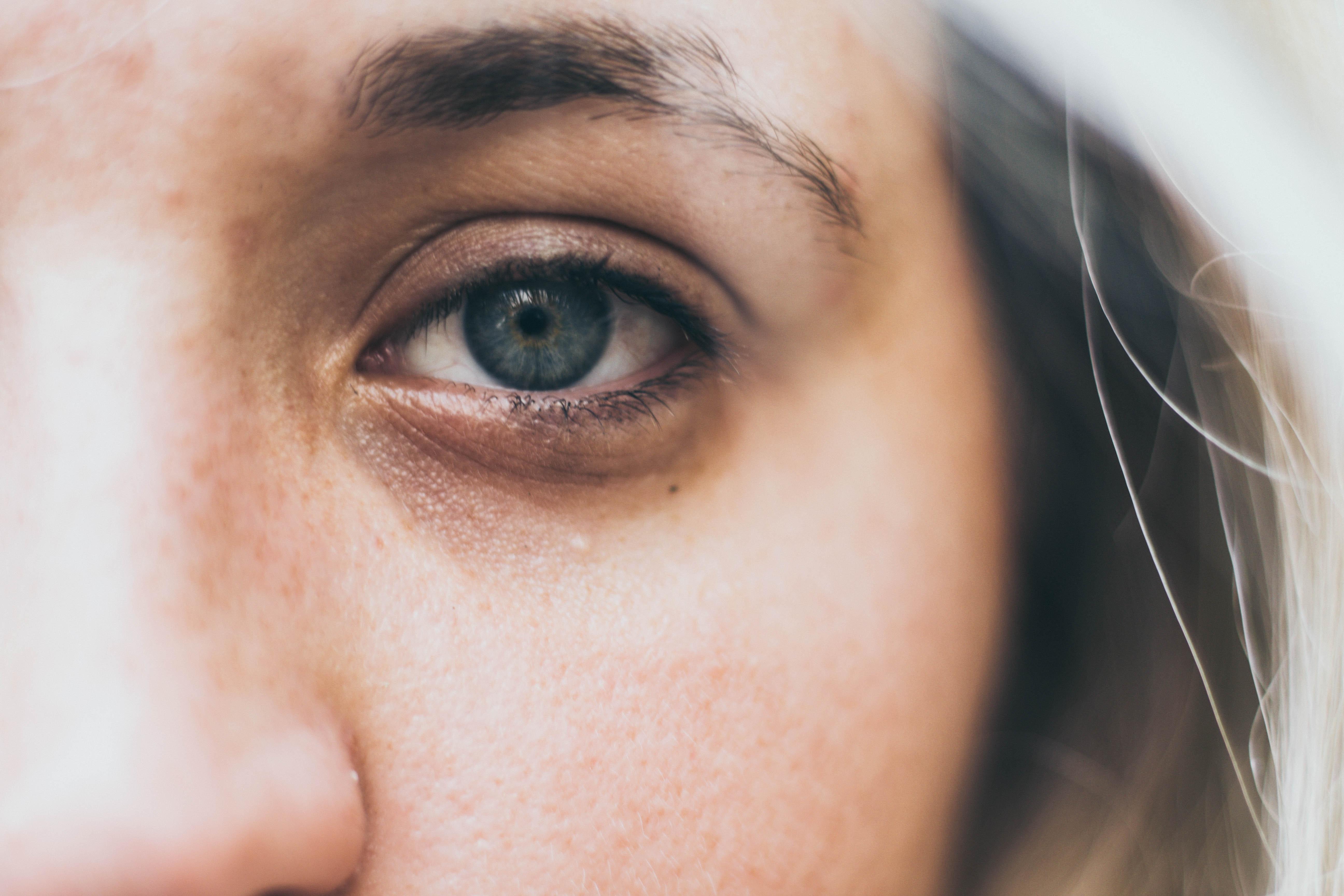 Was Sagen Unterlider Bzw Dunkle Augenringe Nach Der Tcm Uber Deine Gesundheit Aus Elisabeth Mohr Mohr Tcm